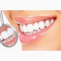 Профессиональное отбеливание зубов системой Beyond Polus Киев
